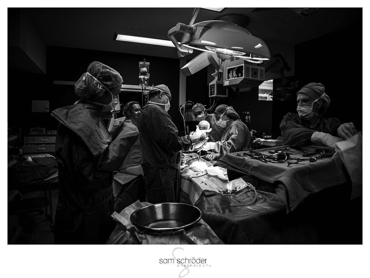 Birth Photography_Gauteng_C-Section Birth Photography_TL413